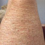 Pijlstaartrogolie droge huid